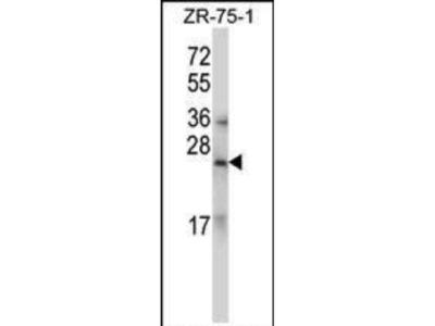 Rabbit Anti-RLN1/RLN2, CT Antibody