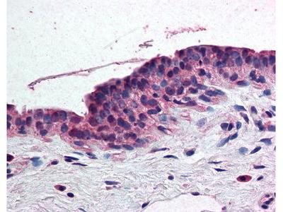 Rabbit Anti-Retinoic Acid Receptor alpha Antibody