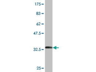 Mouse Anti-METTL2 Antibody