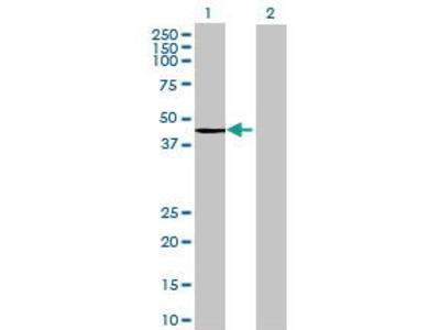 Mouse Anti-ACAA1 Antibody