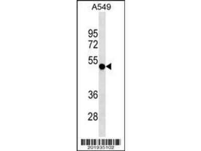 Mouse Anti-RUVBL1 Antibody