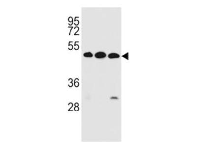 Rabbit Anti-KREMEN2, ID Antibody