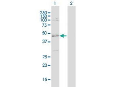 Rabbit Anti-SLC25A31 Antibody