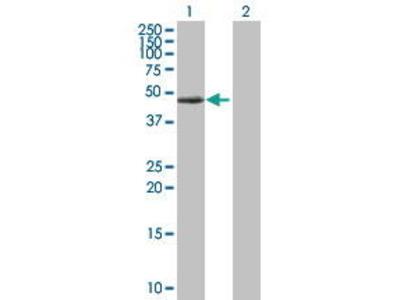 Rabbit Anti-PRKAR1A Antibody