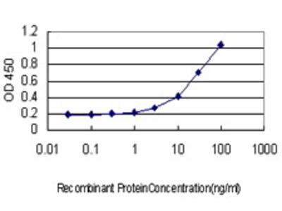 Mouse Anti-FBXL3 Antibody