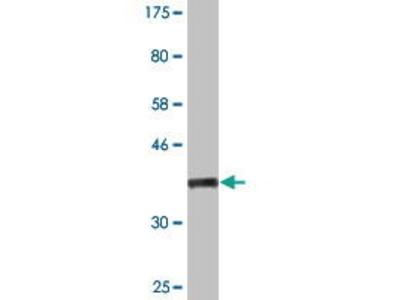 Mouse Anti-NOS2 Antibody