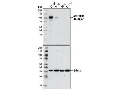Rabbit Anti-Androgen Receptor Antibody