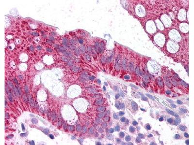 Rabbit Anti-CDKN2A, NT Antibody
