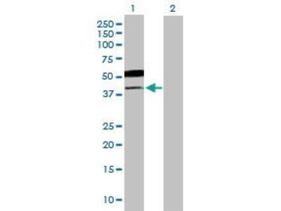 Mouse Anti-B3GNT5 Antibody