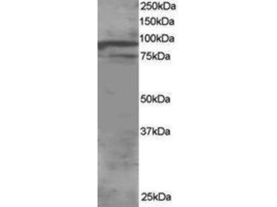 Goat Anti-OSBPL11 Antibody