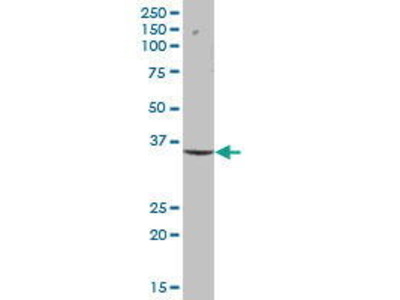 Mouse Anti-XPA Antibody