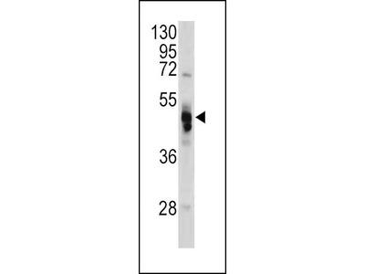 Rabbit Anti-GLA, NT Antibody