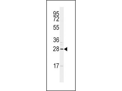 Pab Rb x human SNAI1, NT (R8) (Zinc Finger Protein SNAI1, Protein Snail Homolog 1, Protein sna, SNAI1, SNAH antibody