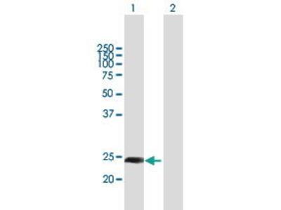 Mouse Anti-CXorf48 Antibody