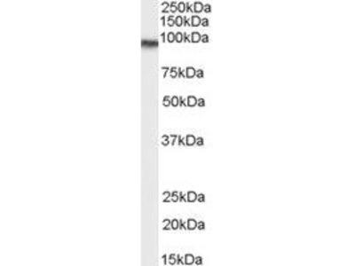 Goat Anti-Transglutaminase 2 Antibody
