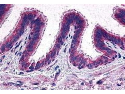 Rabbit Anti-EP2 Receptor Antibody