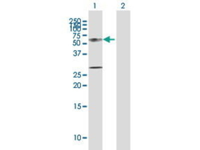 Rabbit Anti-KRT12 Antibody