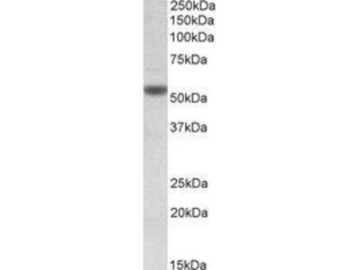 Goat Anti-CHRNA5 Antibody
