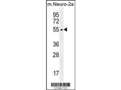 Rabbit Anti-ZDHHC1, NT Antibody