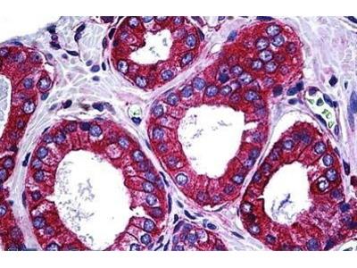 Mouse Anti-CIKS Antibody
