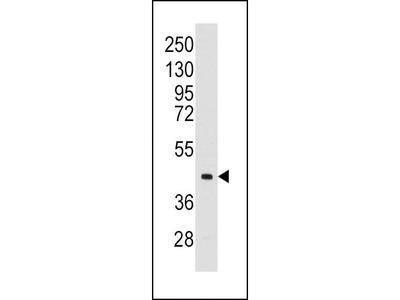 Rabbit Anti-ALDOC, CT Antibody
