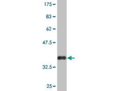 Mouse Anti-ACRC Antibody