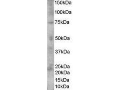 Goat Anti-Melanoma, gp100 Antibody