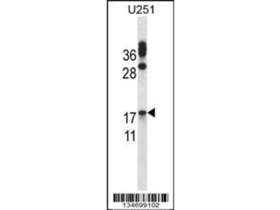 Rabbit Anti-CGB/hCG-Beta, ID Antibody
