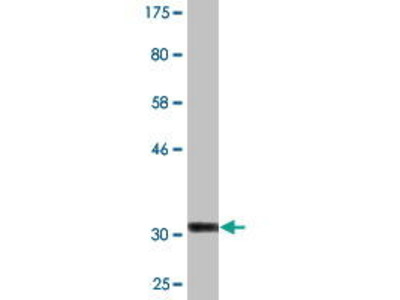 Mouse Anti-COL25A1 Antibody