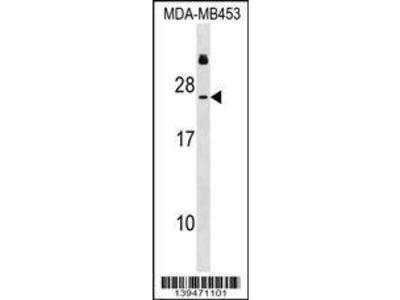 Rabbit Anti-RNASE2, CT Antibody