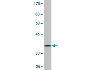 Mouse Anti-CNOT8 Antibody