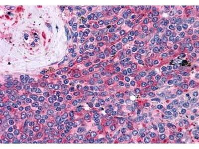 Mouse Anti-LST1 Antibody