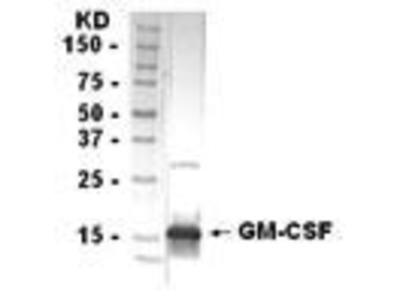 Chicken Anti-Granulocyte Macrophage Colony Stimulating Factor Antibody