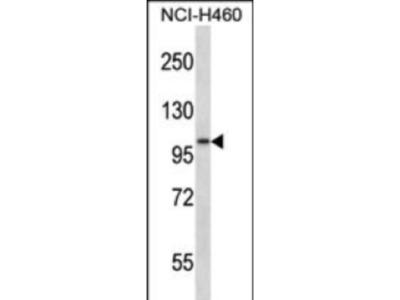 Rabbit Anti-ADAM8, NT Antibody