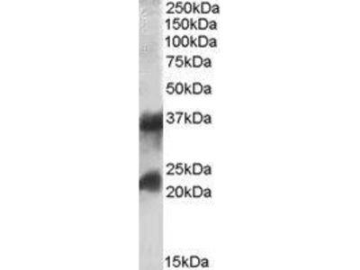 Goat Anti-CLTA Antibody