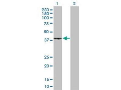 Rabbit Anti-PRKACG Antibody