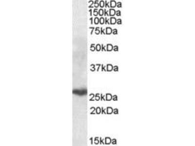 Goat Anti-PSMB10 Antibody