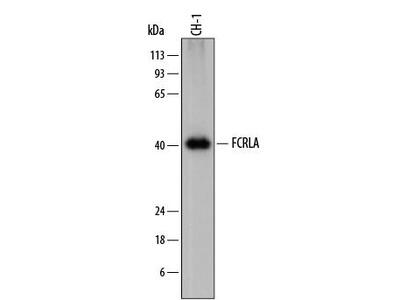 Sheep Anti-FCRLA Antibody
