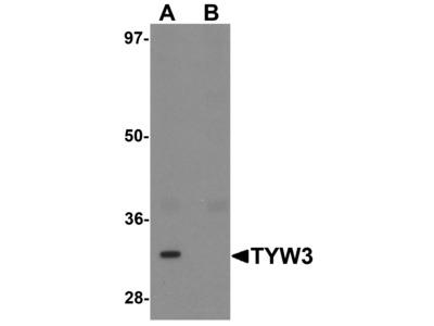 Rabbit Anti-TYW3 Antibody