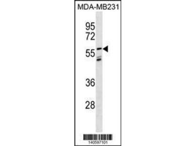 Rabbit Anti-LGI3, ID Antibody
