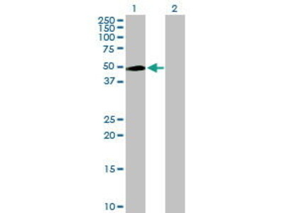 Mouse Anti-INPP5K Antibody