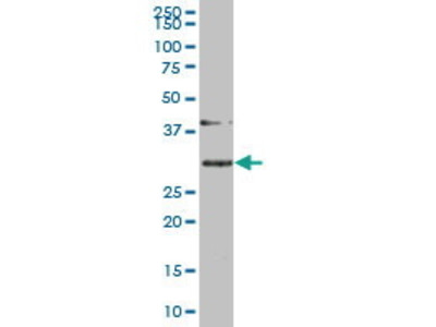 Mouse Anti-SLBP Antibody