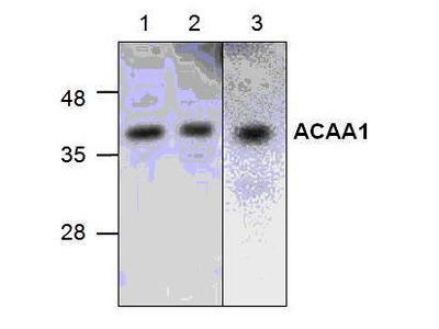 Rabbit Anti-Acaa1 Antibody