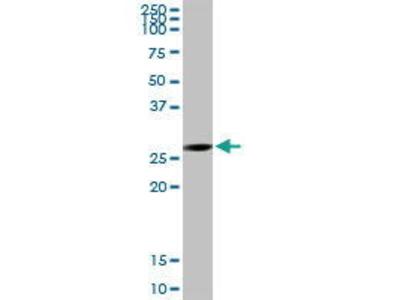 Rabbit Anti-ECHS1 Antibody