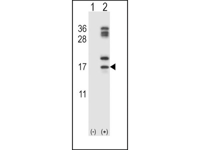 Rabbit Anti-CLC, CT Antibody