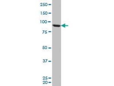 Mouse Anti-TARS Antibody