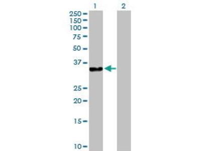 Rabbit Anti-DNAJB2 Antibody