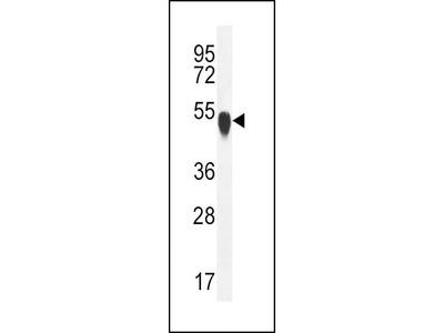 Rabbit Anti-TUBA1C, CT Antibody