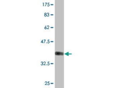 Mouse Anti-GALNT13 Antibody