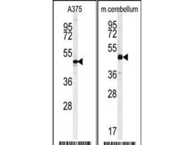 Rabbit Anti-C10orf46, CT Antibody